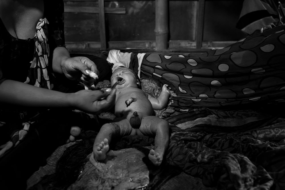Survivor: Survived Against All Odds - Photo Series By Farida Alam