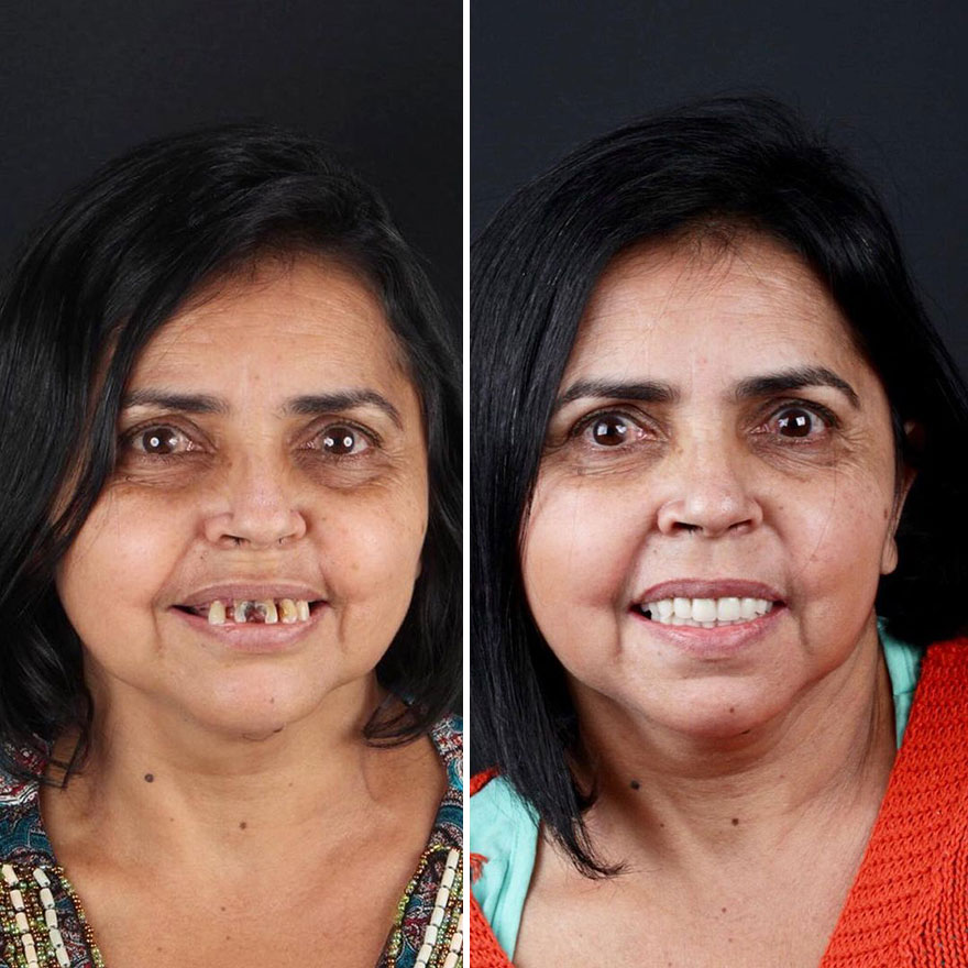 Brazilian Dentist Felipe Rossi Treat The Teeth Of Poor People: Here Are The 30 Photos Of Transformations